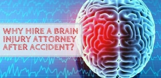 Why Hire a Brain Injury Attorney after Accident?