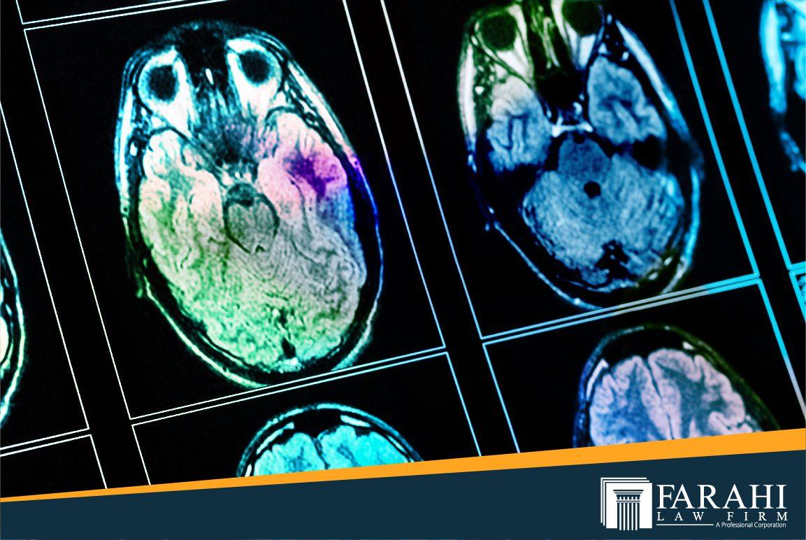 interesting facts about traumatic brain injury